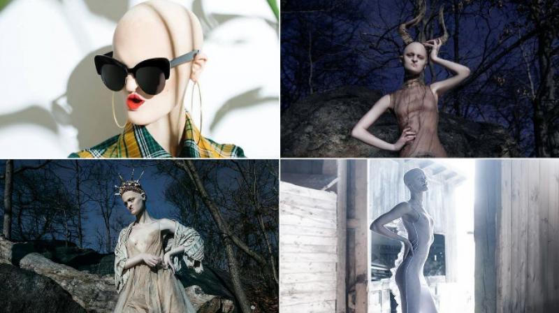 Melanie Gaydos uses her rare genetic disorder to break fashion stereotypes. (Photo: Facebook/Melanie Gaydos)