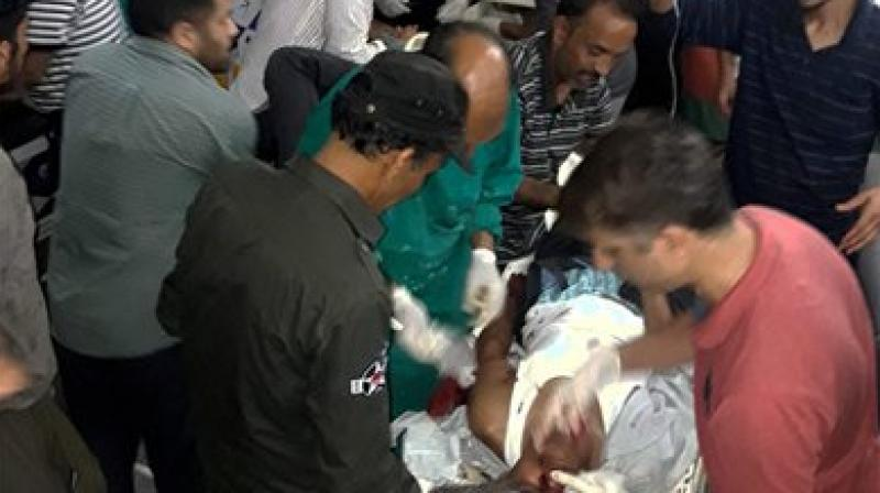 Injured being treated in a hospital after militants opened fire on the Amarnath Yatra in which some pilgrims were killed many injured in Anantnag in Jammu and Kashmir on Monday. (Photo: PTI)