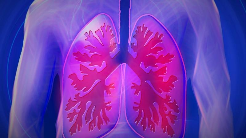 Hormone key to preventing pneumonia identified