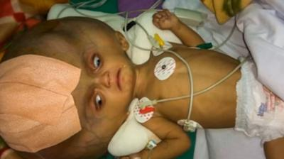 Baby with 'world's largest head' gets operated to drain fluid from skull