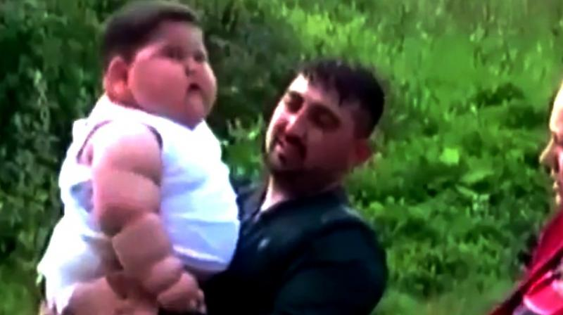 18-month-old baby weighing 31 kg uncontrollably gains 2 kg every month