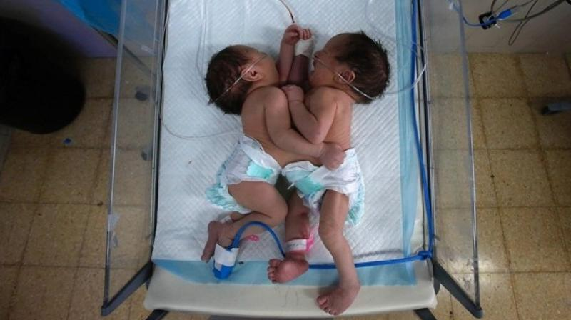 Conjoined twin sisters born in West Bank share one heart