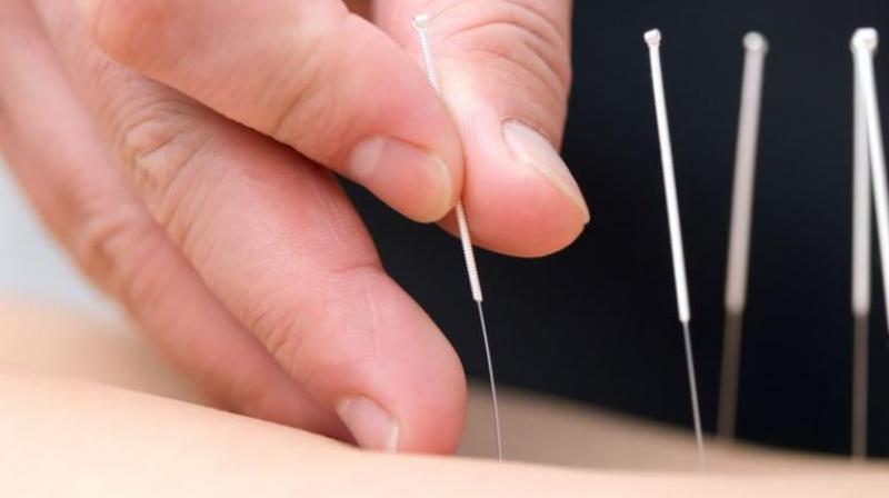 Acupuncture is a key component of traditional Chinese medicine. (Photo: Pixabay)