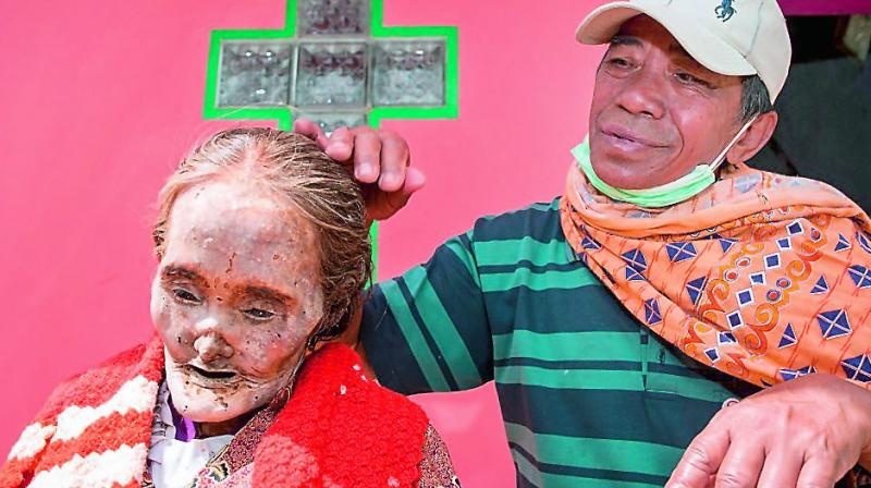 A Toraja tribesman with his mother's corpse.