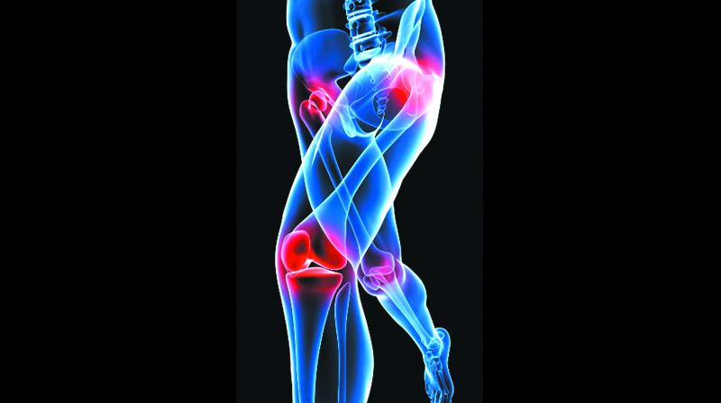Chondron ACI, the country's first cell therapy product, helps treat defects in the cartilage in the joints and was recently granted market authorisation by the union health ministry and Drug Control General of India (DCGI).
