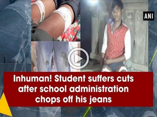 Inhuman! Student suffers cuts after school administration chops off his jeans